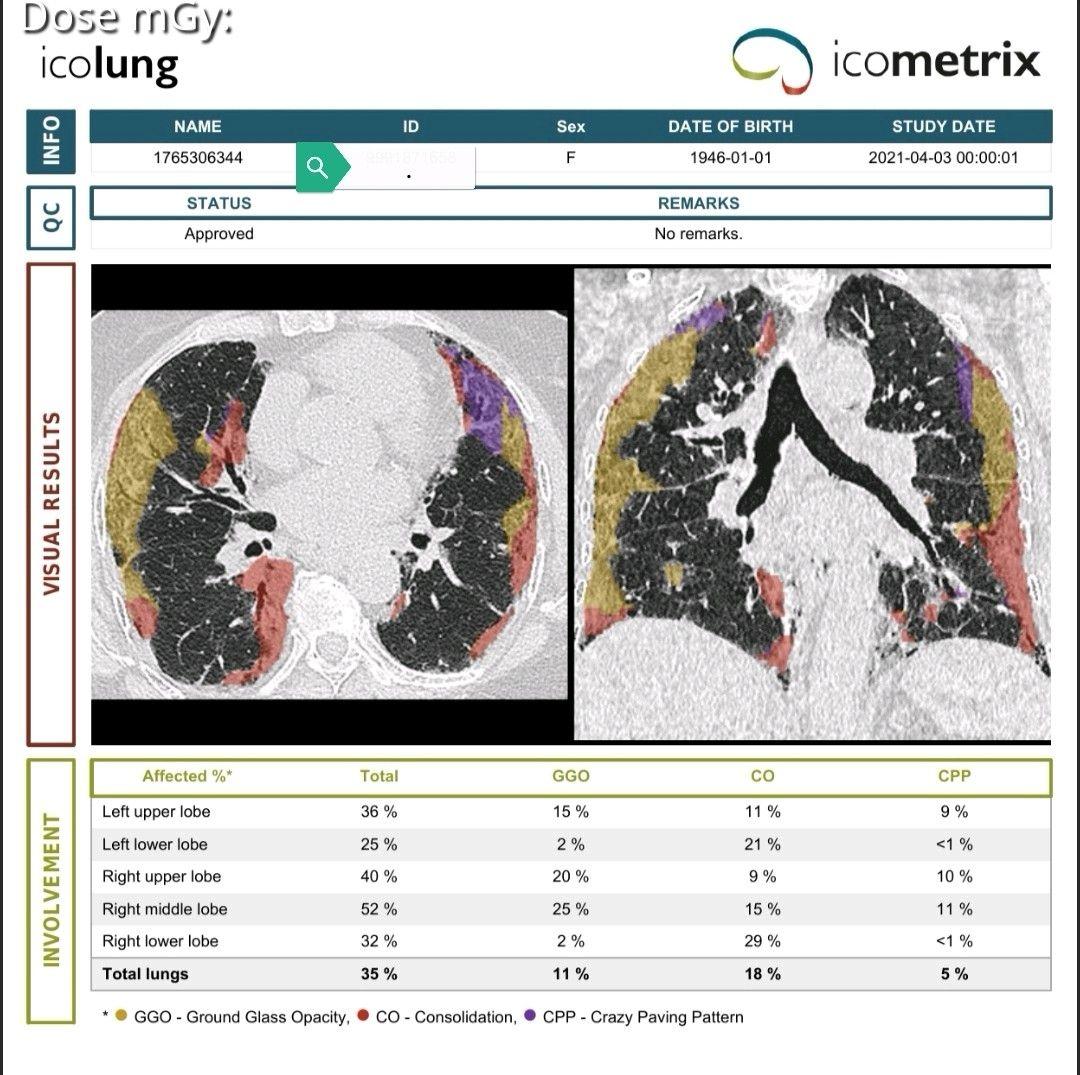 Covid19 ➡️ 1 an déjà et 4000 Scanners diagnostics réalisés