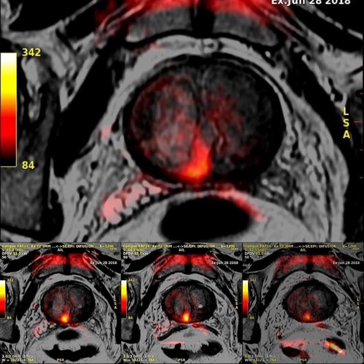 Imagerie IRM Multi-Paramétrique de la Prostate