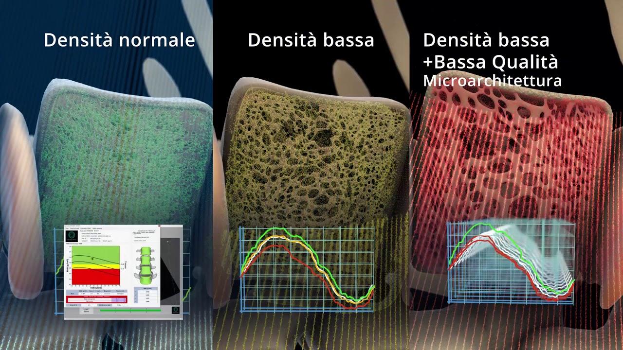 Etude Multicentrique Ostéodensitométrie REMS