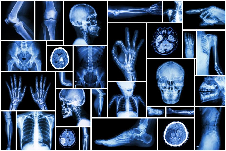 radiologie generale